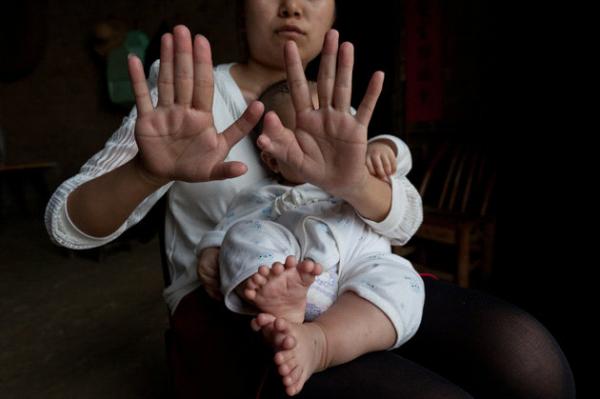 画像あり】指が31本の赤ちゃん!...